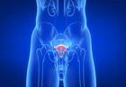 前列腺结石有哪些危害 如何治疗
