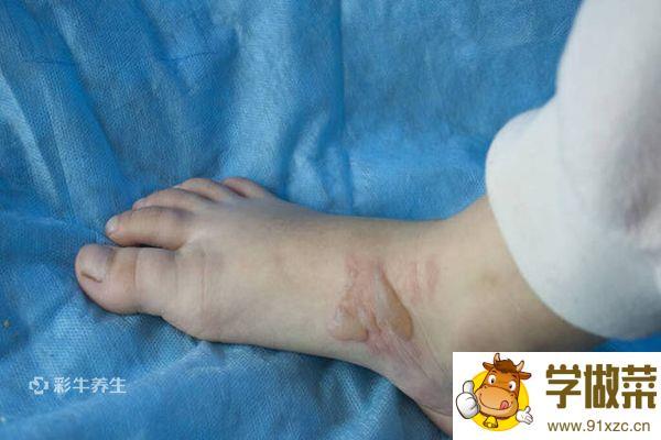 脚上长水泡图片 脚上长水泡是什么原因引起的